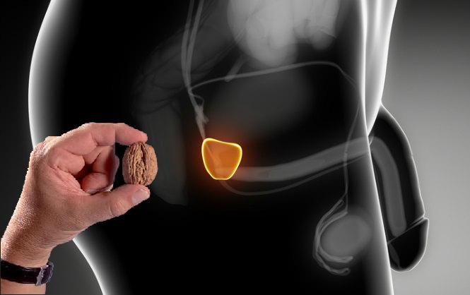tamaño de la prostata